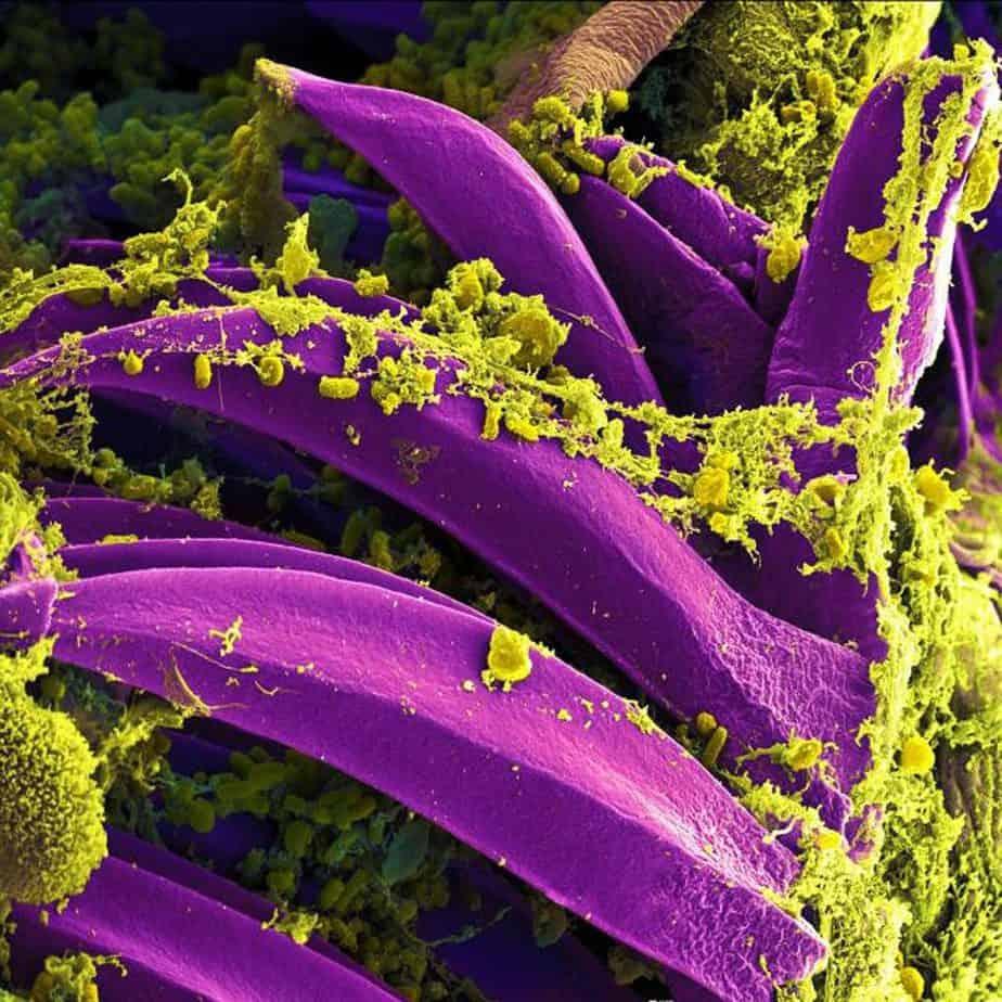 Bacteria Plague