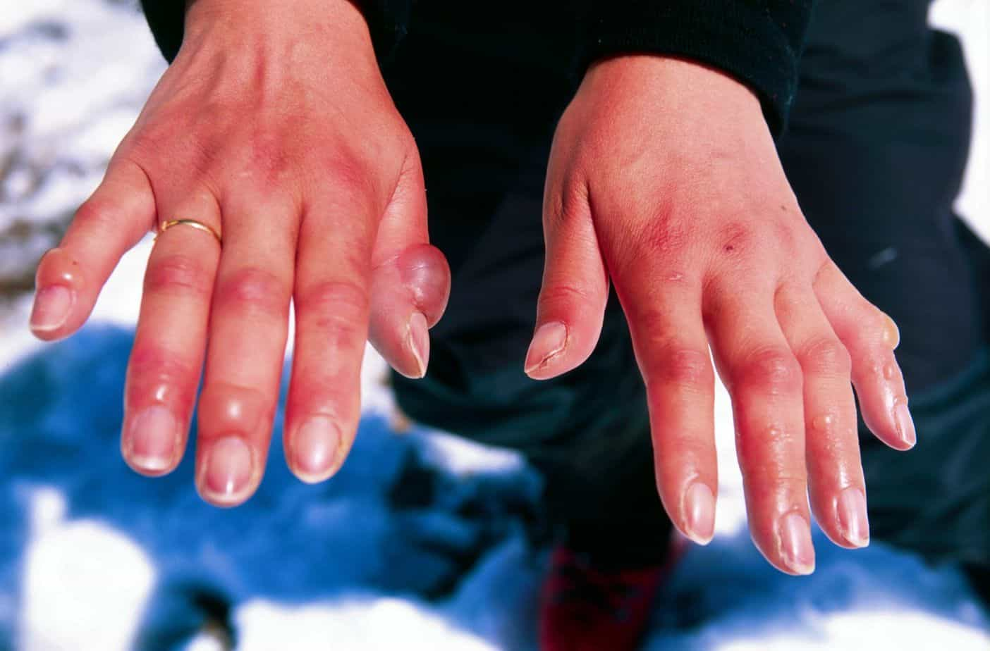 Dealing With Frostbite