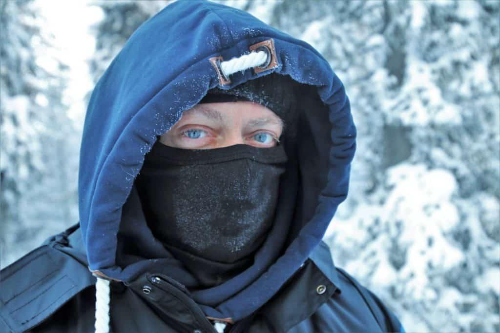 Frostbite When Stuck In The Wilderness