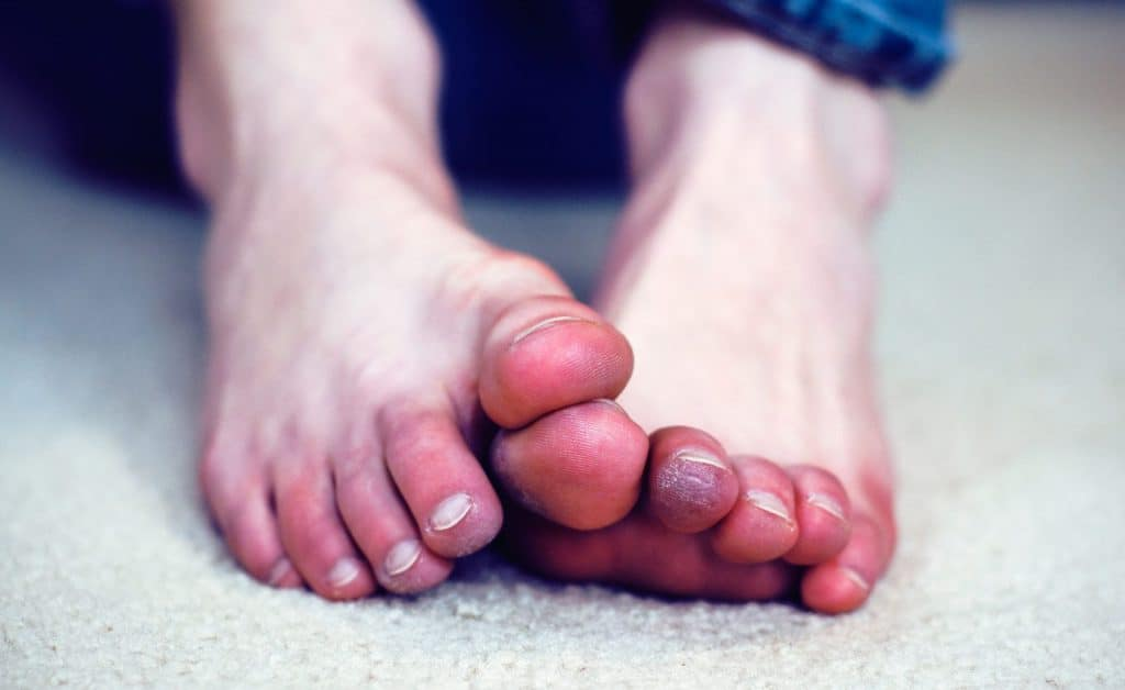 frostbite feet